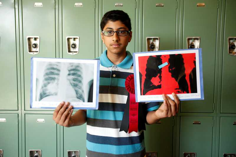 by: TIMES PHOTO: JONATHAN HOUSE - Stoller Middle School student Aditya Jain holds two differnet scans of cancer in a lung. The traditional scan on the left, makes it hard to see the early-stage cancer, while the image on the right, utilizing algorhythms that he developed, clean up the image to give better accuracy. His work made him this year a Broadcom Master's Semifinalist.