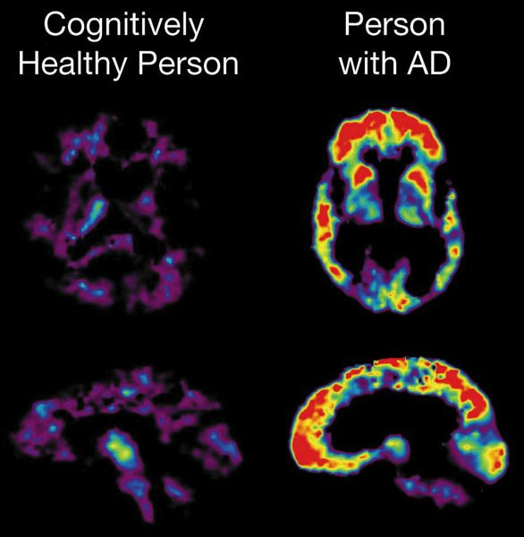 by: COURTESY OF: NATIONAL INSTITUTES OF HEALTH - More than 80 percent of doctors said they would use brain scans to detect buildup of amyloid plaque (pictured) to detect Alzheimers Disease (AD). A new blood test holds even greater promise as an Alzheimers predictor.
