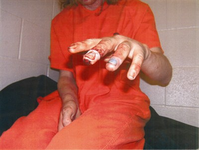by: Submitted photo - Curtis Hooper shows the damage to his fingers caused by a former JCSO deputy closing them in a steel door. The deputy was fired and charged with assault.