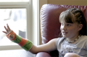 by: Chase Allgood, Makenna Sewell, 10, broke her wrist June 18 in a scooter accident.