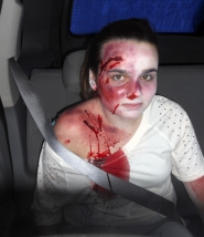 by: contributed photo, The makeup on victims was applied by medical professionals who have seen the wreckage and injuries from drunk driving accidents and was designed to look as realistic as possible. Here Kayla McAulay shows the wounds she sustained as a passenger.